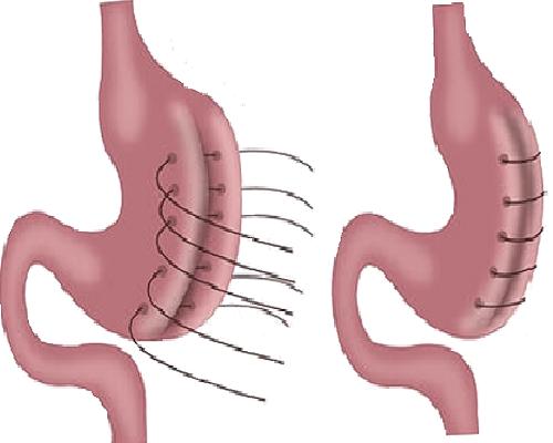 Gastric Plication Tyrkiet
